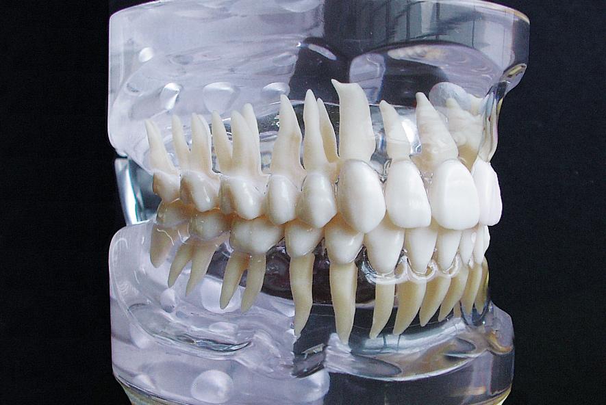 Cirugía Oral 1